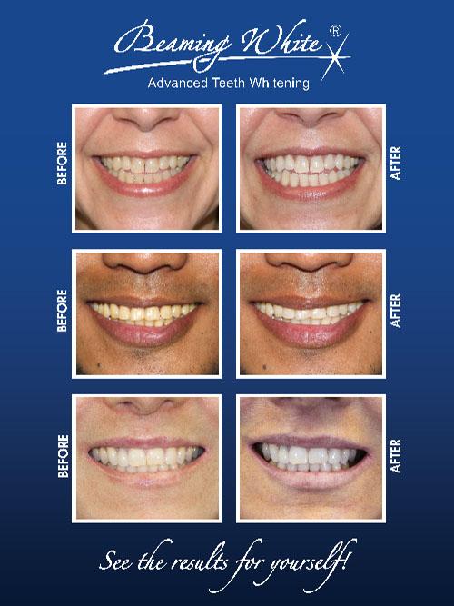 Teeth Whitening Posters Beaming White