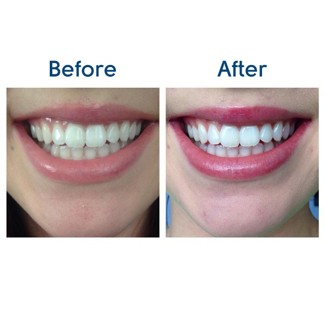Deluxe Home Teeth Whitening Kit Beaming White